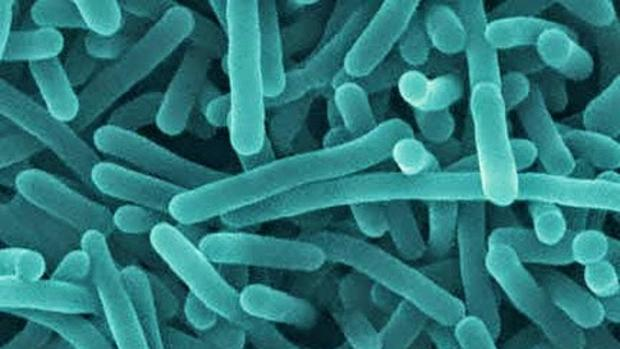 Bacteria La listeria