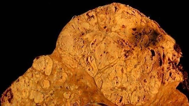 Carcionoma hepatocelular